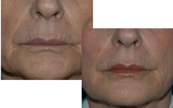 Fillers Results Image