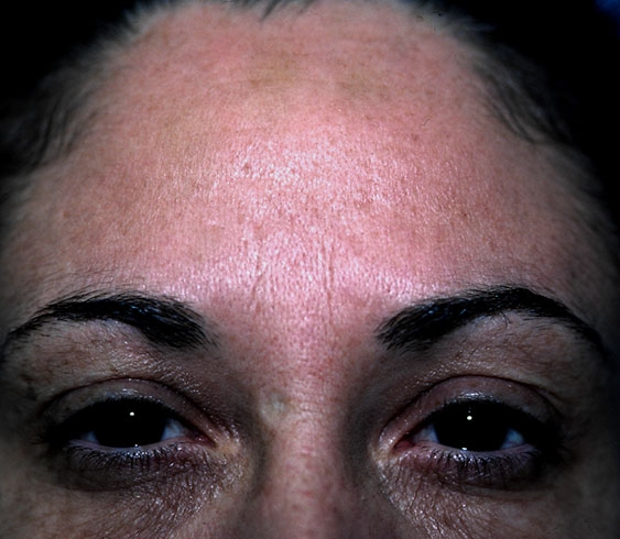 After Botox Injection Result Princeton NJ