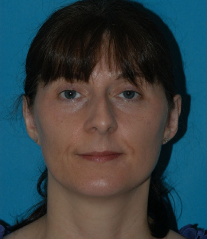 Eugenie Brunner Otoplasty Patient After Photo Princeton NJ