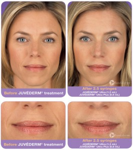 Juvederm Injectable Filler Before After Infographic Princeton NJ