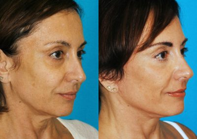 Before and after of a woman's facelift in Princeton New Jersey