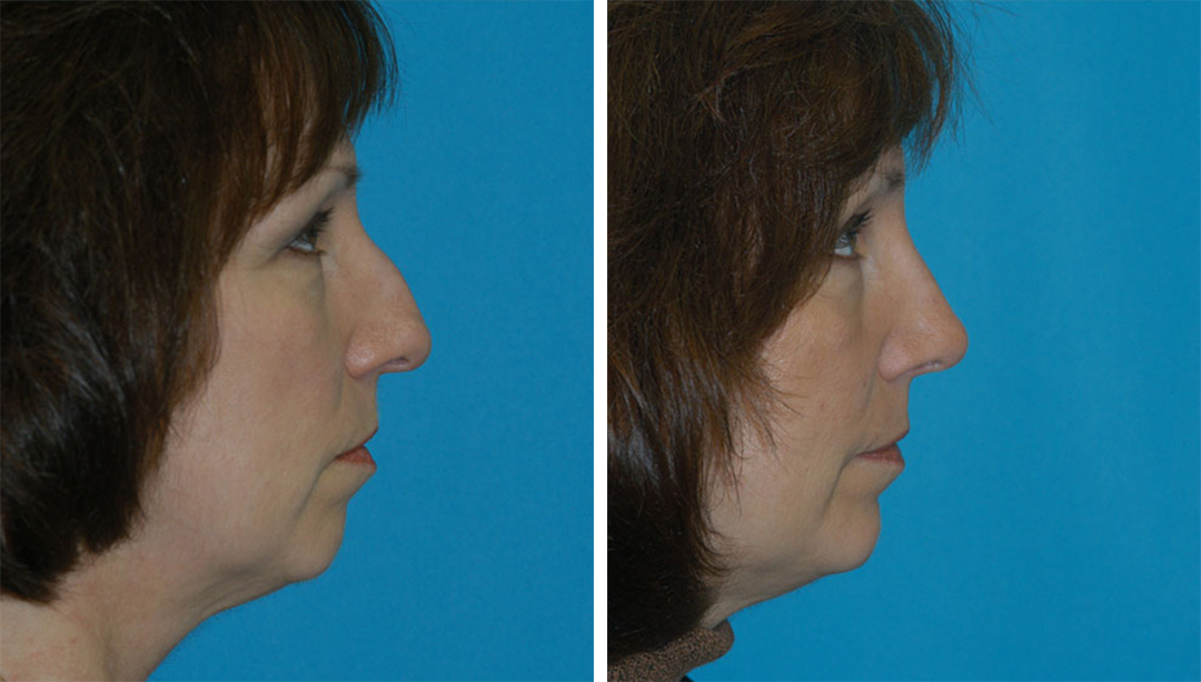rhinoplasty before after in princeton, nj