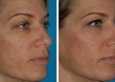 Clear Brilliant Before After Results Princeton NJ