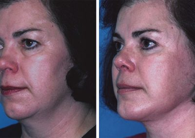 Facelift and Chin Implants
