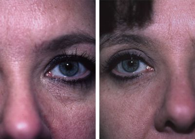 Eugenie Brunner Blepharoplasty Before After Princeton NJ