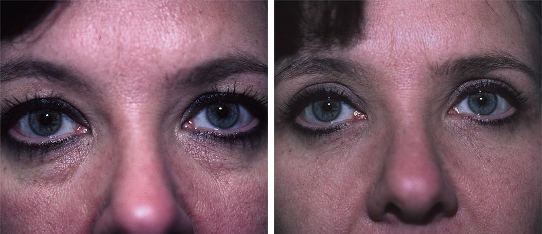 Eugenie Brunner Blepharoplasty Before After Princeton NJ