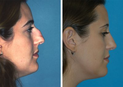Eugenie Brunner Rhinoplasty Before After Princeton New Jersey