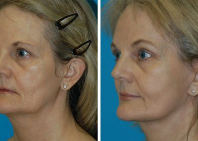 Facelift & Browlift