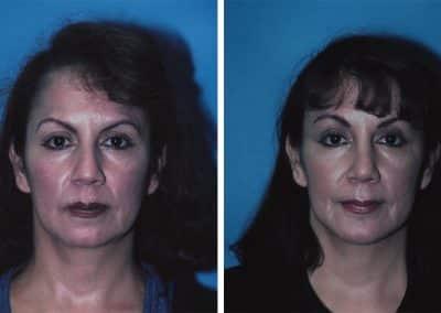Forehead/Browlift, Rhinoplasty, and Chin Implants
