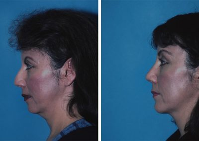 Forehead/Browlift, Rhinoplasty, and Chin Augmentation