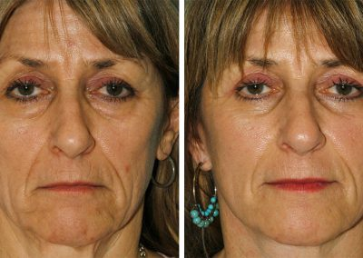 Face & Neck Lift