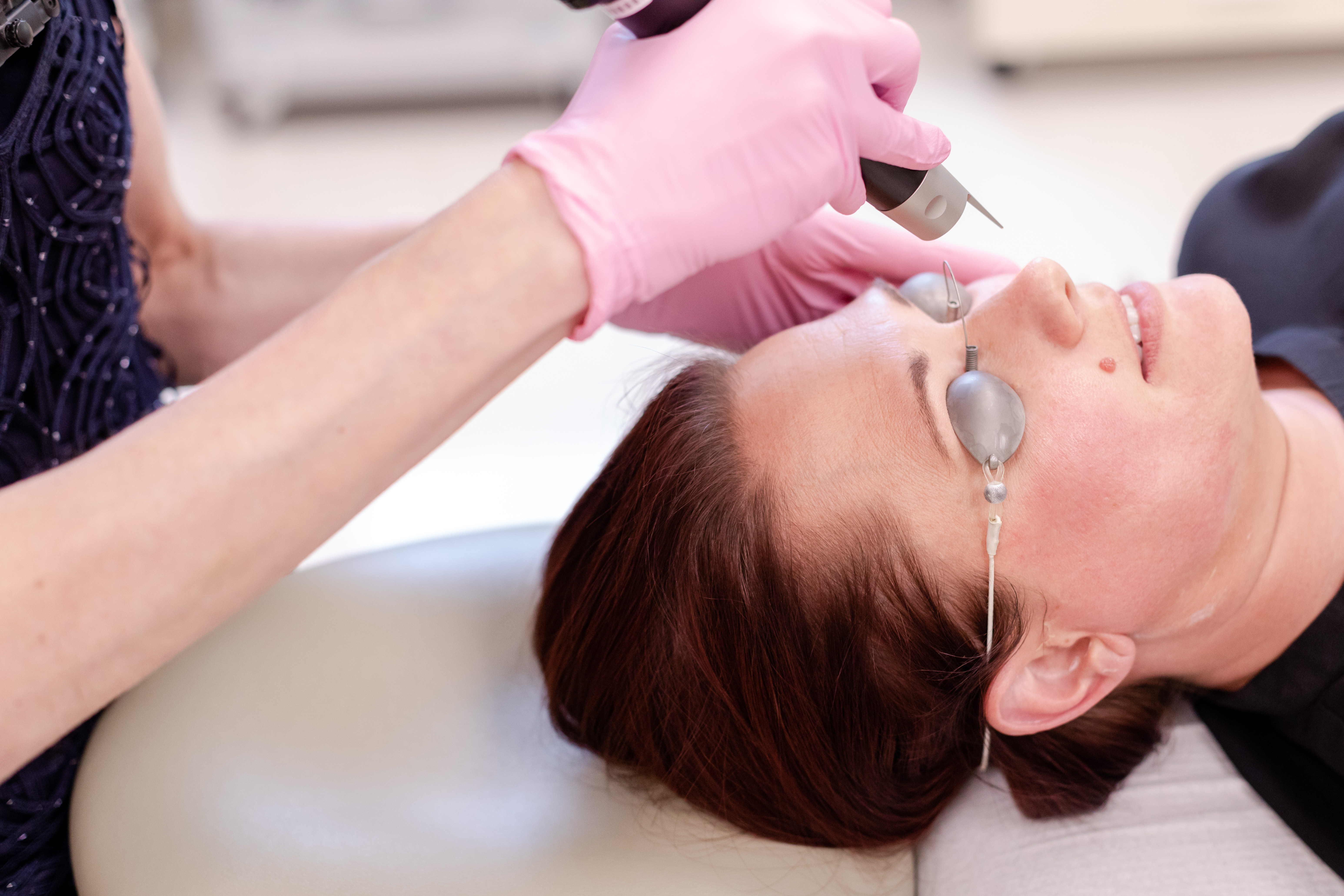 Photofacial IPL Treatment Princeton NJ