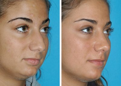 Princeton New Jersey Rhinoplasty Before After Eugenie Brunner