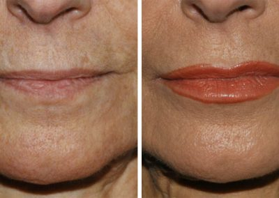 Belotero Balance Dermal Filler