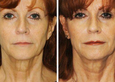 EmbraceRF Facial Rejuvenation Before After Princeton NJ