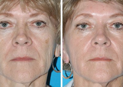 Eugenie Brunner Fraxel Laser Treatment Results Princeton NJ