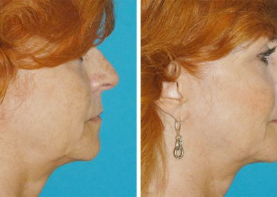 Fractora RF Skin Tightening