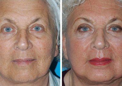 Fraxel Laser Dual Before After Results Princeton NJ
