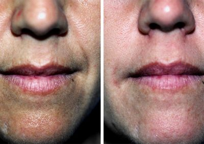 Juvederm Voluma Injection to the Lips
