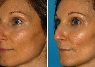 PicoSure Laser Skin Rejuvenation Results Princeton NJ