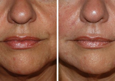 Restylane Filler Injection to the Lips