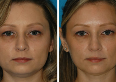 Clear + Brilliant, Botox, and Restylane