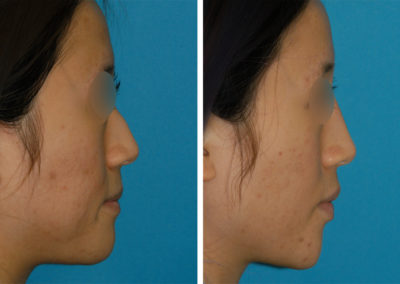 Dermal Filler and Botox Injections