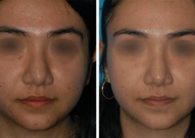 ADVALight Acne Treatment