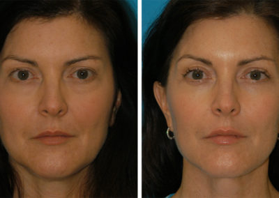 Upper and Lower Blepharoplasty, FaceTite/Embrace