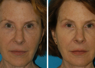 Brunner_BeforeAfter_4Months_Upper and Lower Bleph-Filler Lips-Facelift_Frontal_Eastridge