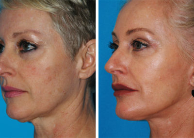 Varilite Laser, Dermal Fillers, SmartLipo and Facelift