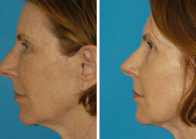 Blepharoplasty, Facelift and Lip Filler
