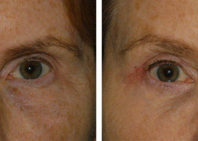 Upper and Lower Blepharoplasty, Facelift, Lip FIllers