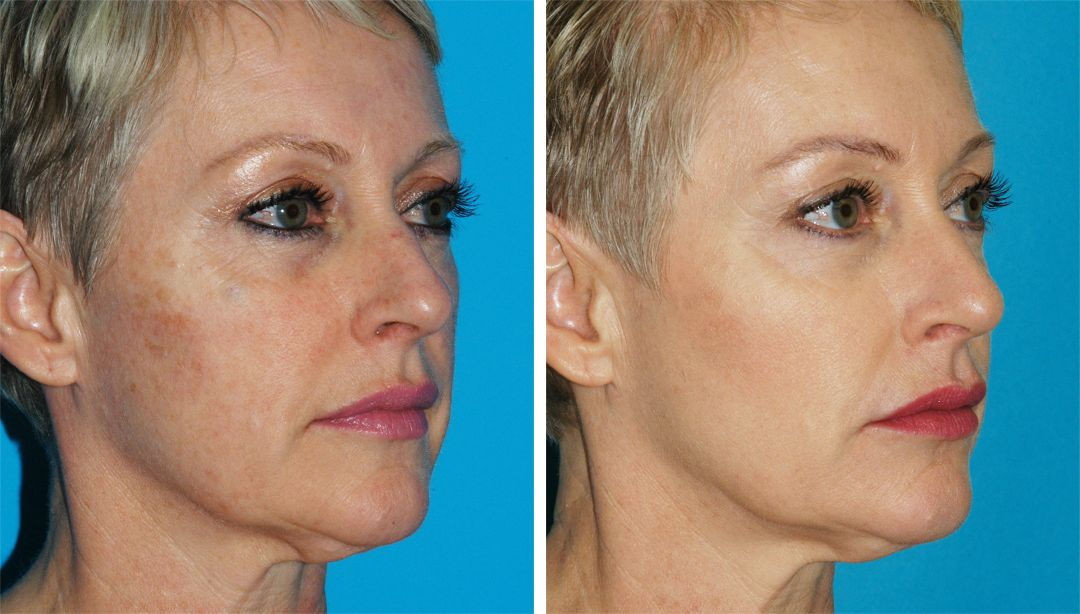 How One Woman Approached Anti-Aging Treatments Over the Years