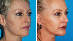 facelift plastic surgery in princeton, nj