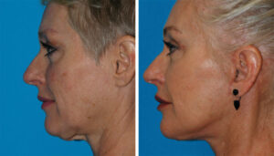 facial plastic surgery treatment in princeton, nj