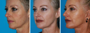 facelift facial plastic surgery procedure in princeton, nj