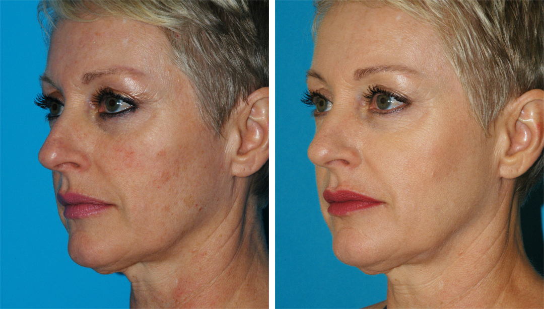 laser dermatology treatments in prinecton, nj