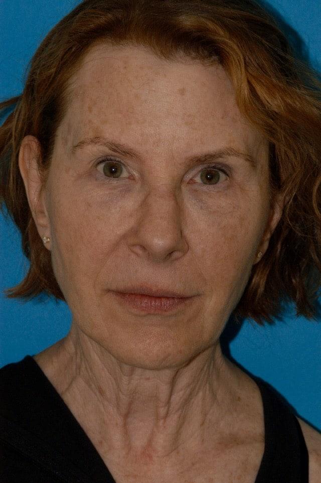 anti aging treatment in princeton, nj