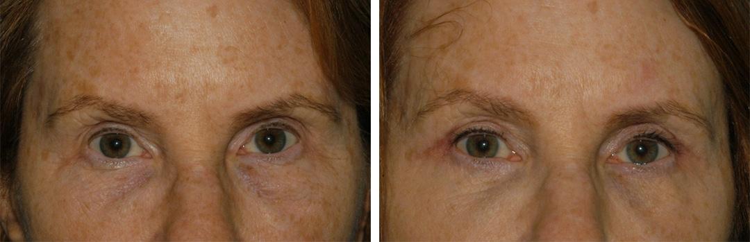blepharoplasty eye surgery in princeton, nj