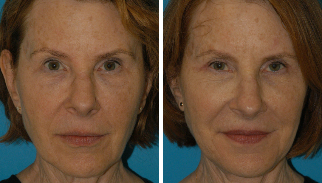 facial plastic surgery results in princeton, nj