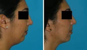 Smart Lipo treatment to remove chin fat results princeton, NJ