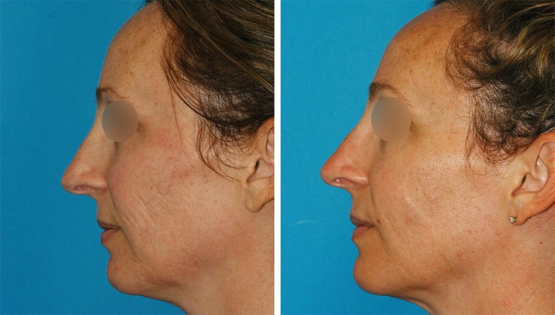 microneedling with PRP to rejuvenate the skin in Princeton, NJ