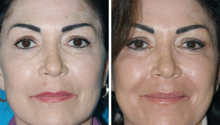 laser skin resurfacing results in Princeton, NJ