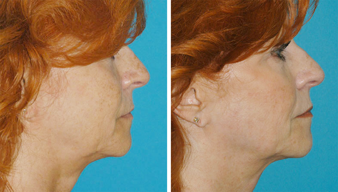Before and after results of a patient who received a Fractora RF treatment in Princeton