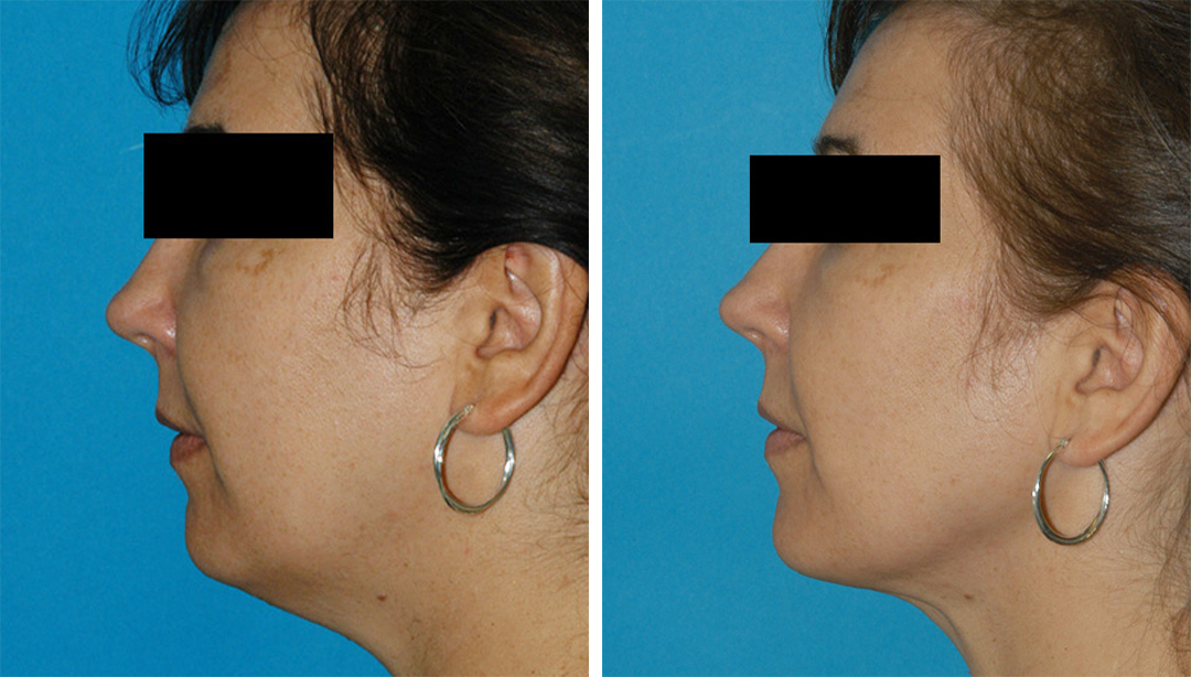 Tri-Zone Laser Lift before and after results in Princeton, NJ