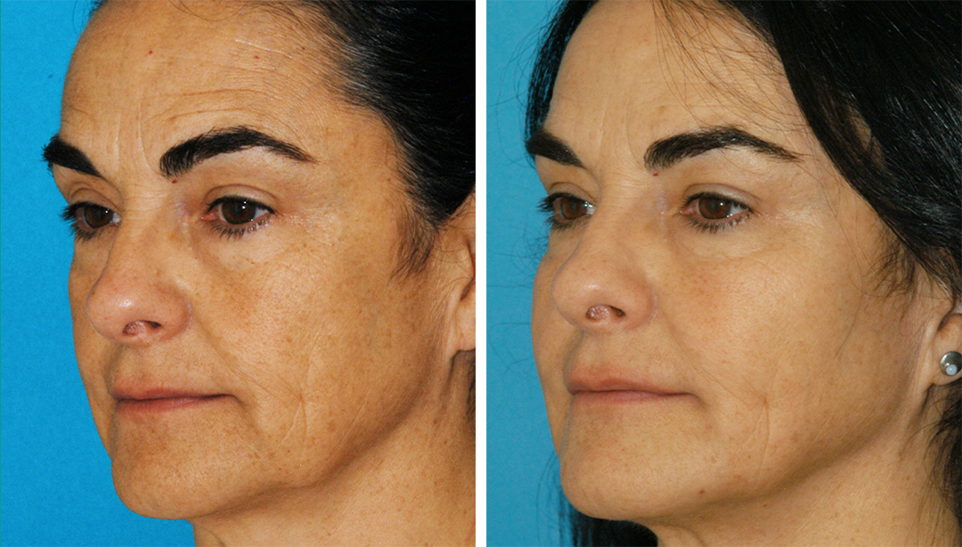 non-surgical laser lift makeover before and after results from Dr. Brunner in Princeton, NJ