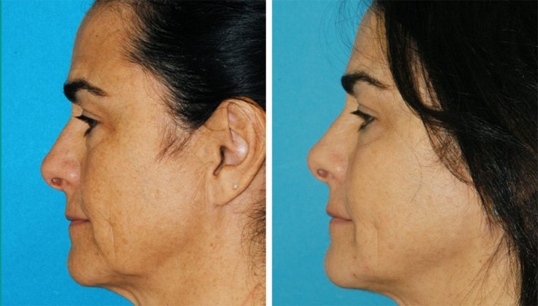 Non-surgical neck lift results from an EmbraceRF treatment in Princeton