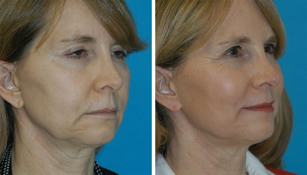 patient before and after Thermage skin tightening results in Princeton, NJ