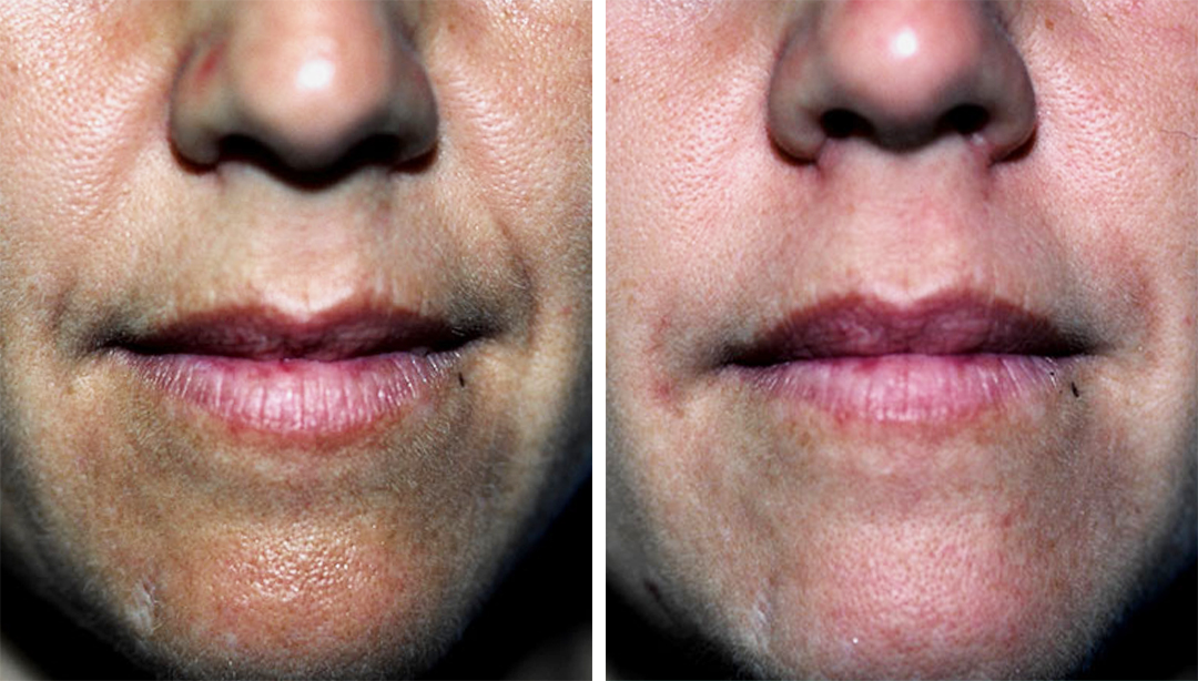 Images of a lower face of a woman comparing the results of injectables, wrinkles are greatly reduced. Injectables and fillers in Princeton, NJ